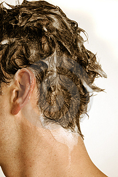 premature greying and dandruff