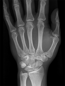 Fracture treatment in Ayurveda