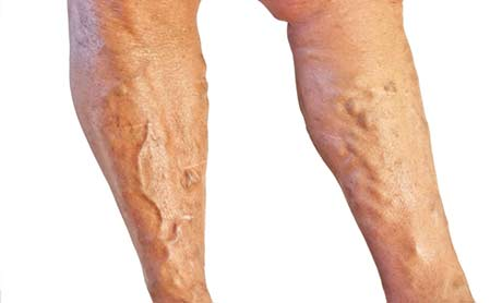 Ayurvedic treatment options for Varicose Veins